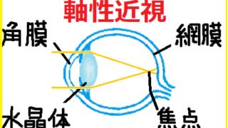 軸性近視の目