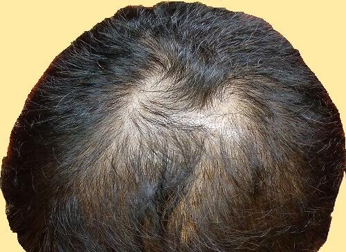 現在の頭頂部